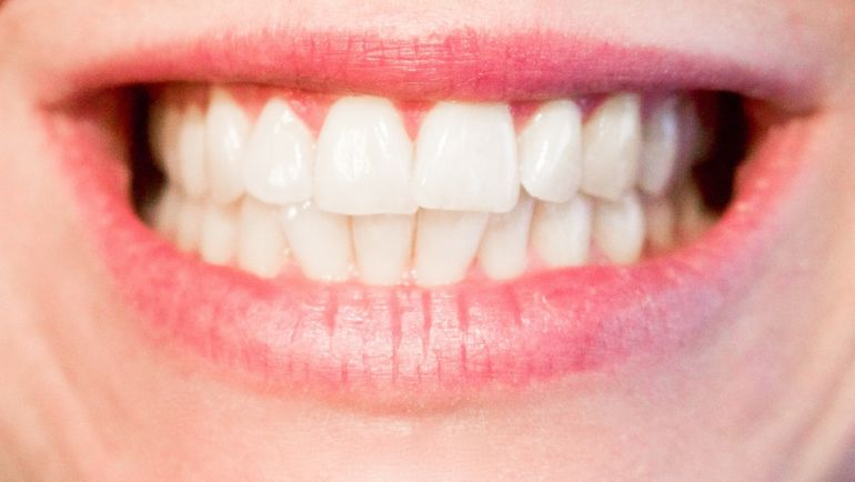 Comment conserver une bonne hygiène bucco-dentaire ?