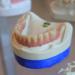 Pourquoi avoir recours à un implant dentaire ?